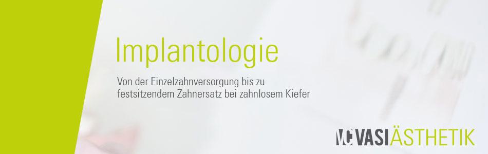 Implantologie - Hervorragende Möglichkeiten für die Versorgung von Einzel- oder Mehrzahnlücken.